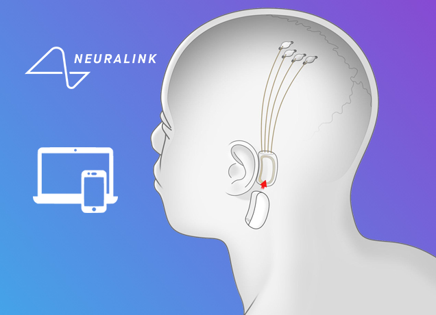 Elon Musk's Neuralink Will Implant Brain-Reading Threads Next Year