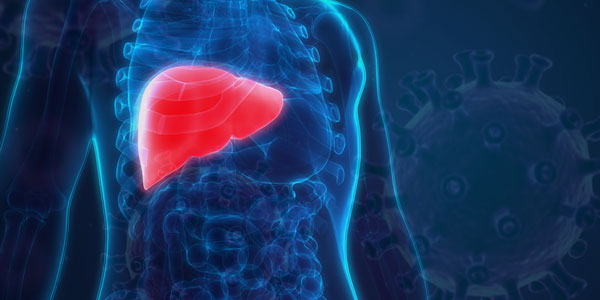 Study Suggests Fatty Liver and Cirrhosis Doubles Mortality Risk in COVID-19